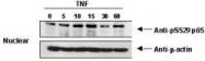 NBP1-77808 - RELA / NF-kB p65