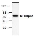 NBP1-45739 - RELA / NF-kB p65