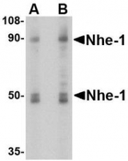 NBP1-76848 - SLC9A1 / NHE1