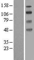NBL1-16200 - SLC9A8 Lysate
