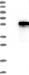 NBP1-84918 - SLC9A3R1 / NHERF