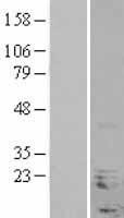 NBL1-13639 - NHLH1 Lysate