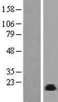 NBL1-13713 - NHP2 Lysate