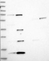 NBP1-89406 - NHP2L1