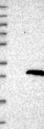 NBP1-81214 - Nicolin-1
