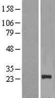 NBL1-13640 - NICN1 Lysate