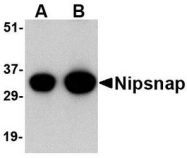 NBP1-76887 - NipSnap1