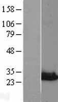NBL1-13646 - NIPSNAP3A Lysate