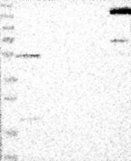 NBP1-81630 - Nischarin