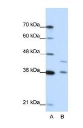 NBP1-54733 - NKD2