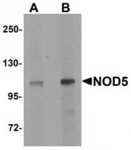 NBP1-76287 - NLRX1 / NOD9