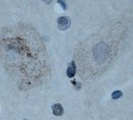 NBP1-46307 - Neuromedin B receptor