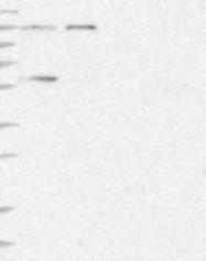 NBP1-84524 - NMD3