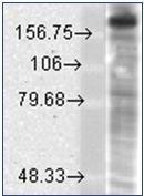 NBP1-47611 - NMDAR2B