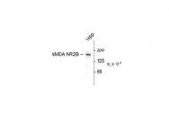 NB300-106 - NMDAR2B