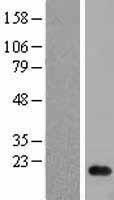 NBL1-13684 - NME2 Lysate