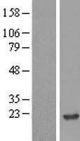 NBL1-13685 - NME2 Lysate