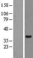 NBL1-13692 - NMNAT2 Lysate