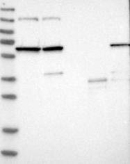 NBP1-82547 - NMT1