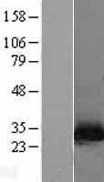 NBL1-13700 - NNMT Lysate