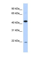 NBP1-55404 - NOB1