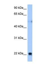 NBP1-69284 - Reticulon-4 / RTN4