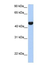NBP1-69286 - Reticulon-4 / RTN4