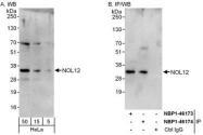 NBP1-46174 - NOL12