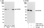 NBP1-46848 - NOL5A