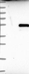 NBP1-86003 - Notum