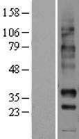 NBL1-13741 - NPBWR1 Lysate