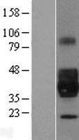 NBL1-13744 - NPDC1 Lysate