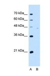 NBP1-62423 - Neuroplastin / SDFR1