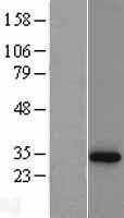 NBL1-13761 - NQO1 Lysate