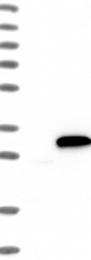 NBP1-85221 - NQO2
