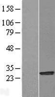 NBL1-13763 - NQO2 Lysate