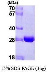 NBP1-41152 - NQO2