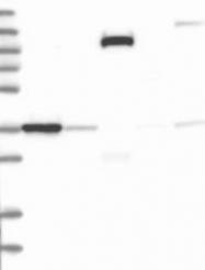 NBP1-86936 - NR2E1