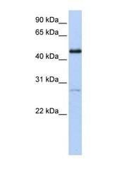 NBP1-52831 - NR2F1