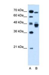 NBP1-52818 - NR2F6