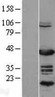 NBL1-13776 - NR2F6 Lysate