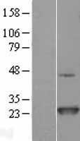 NBL1-13785 - NRAS Lysate