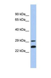NBP1-56293 - NSMCE2