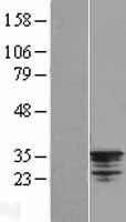 NBL1-13812 - NSE2 Lysate