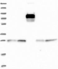 NBP1-92201 - NSMCE1