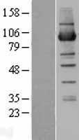 NBL1-13814 - NSUN2 Lysate