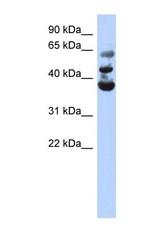NBP1-55169 - NSUN3