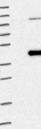 NBP1-83595 - NSUN3