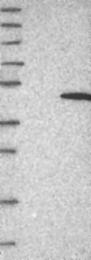 NBP1-82733 - NSUN4