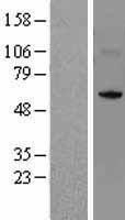 NBL1-13817 - NSUN5 Lysate